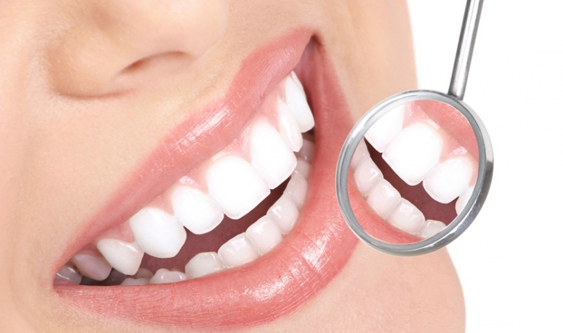 Sağlıklı Dişler İçin 10 Önemli İpucu