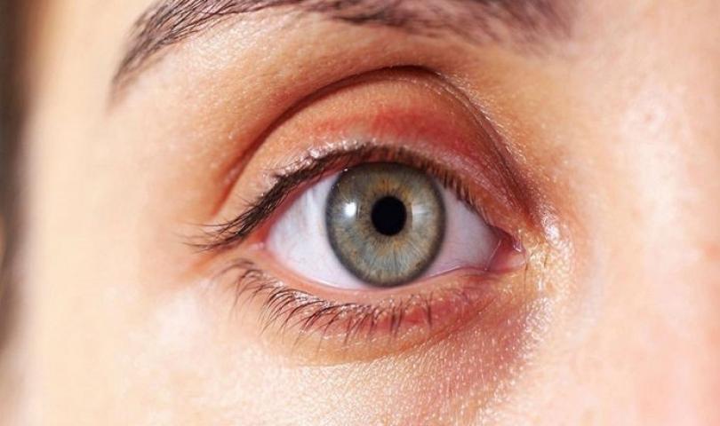 Sarı nokta hastalığından korunmak için beslenmeye dikkat!